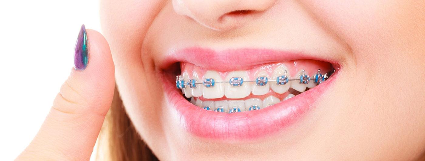 تقویم الأسنان