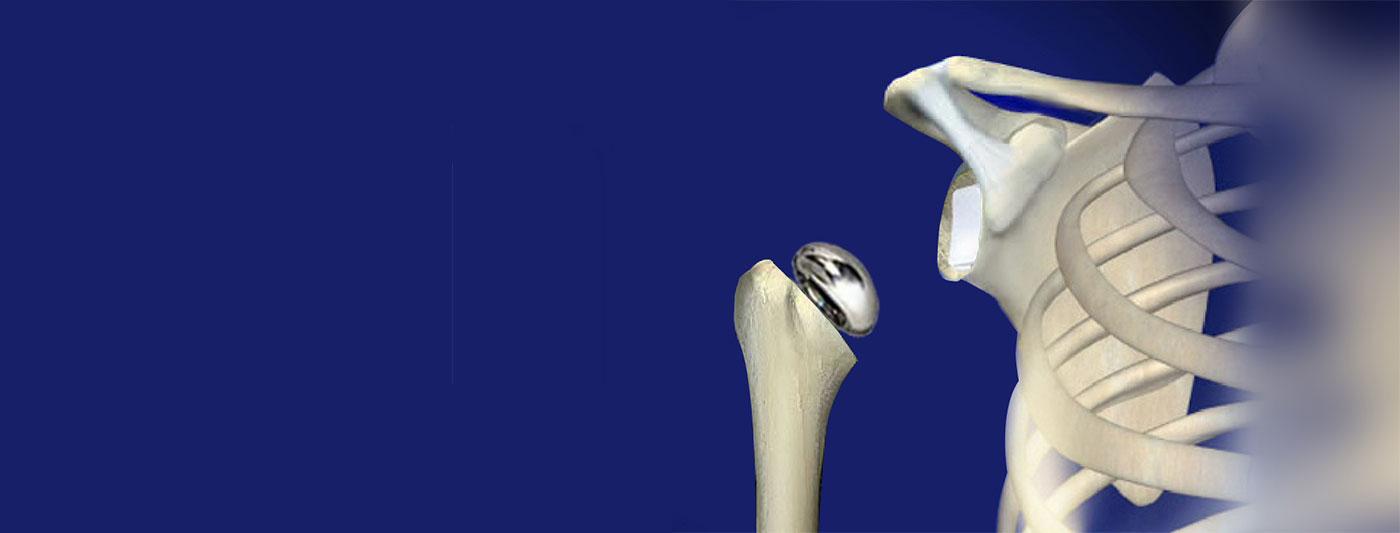 استبدال مفصل الکتف